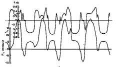 Адаптація хворого до респіратора - штучна вентиляція легенів в інтенсивній терапії