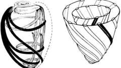 Анатомічна будова міокарда - клінічна анатомія серця