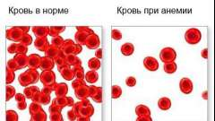 Анемія