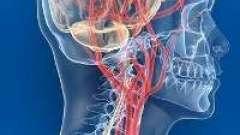 Ангіодистонія