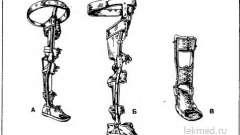 Апарат ортопедичний замковий