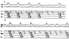 Аритмії серця (4)