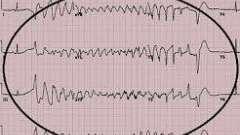 Аритмія при інфаркті