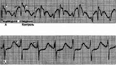 Аритмогенні ефекти гіпокаліємії - аритмії серця (1)