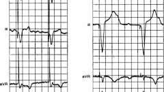 Артефакт імпульсу електрокардіостимулятора - електрокардіограма при штучному водія ритму серця