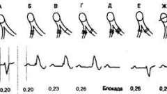 Атріовентрикулярна блокада: неінвазивний підхід - аритмії серця (4)