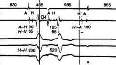 Атріовентрикулярна блокада, спричинена аритмією - аритмії серця (4)