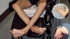 Хвороба вільсона-коновалова