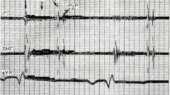 Дефект типу ostium secundum - захворювання серцево-судинної системи дітей