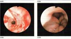 Діагностична ендоскопія вад розвитку і захворювання шлунково-кишкового тракту у дітей - посібник з клінічної ендоскопії