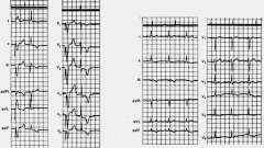 Діагностика інфаркту міокарда - електрокардіограма при штучному водія ритму серця
