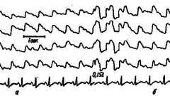 Динаміка рег під час ангіографії - клінічна реоенцефалографія