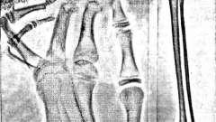Дисплазія-дізостози - клініко-рентгенологічна діагностика дисплазій скелета
