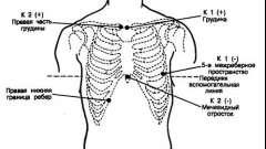 Інші пристрої - аритмії серця (6)