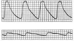 Фізичне дослідження периферичних артерій - клінічна кардіологія ч.2