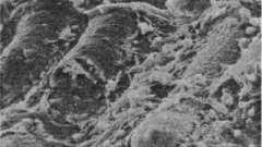Фізіологія кишкової мікрофлори - дисбактеріоз у дітей