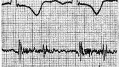 Фонокардіографічне симптоматика при ураженні тристулкового клапана - звукова симптоматика набутих вад серця