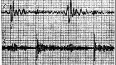 Фонокардіографічевкая симптоматика комбінованих клапанів аорти - звукова симптоматика набутих вад серця