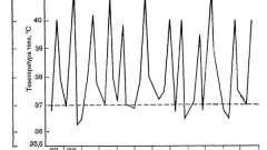 Форма юра, що починається з системних проявів - ювенільний ревматоїдний артрит