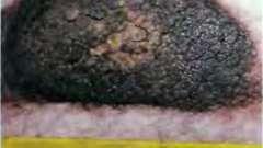 Фото меланоми - меланома шкіри