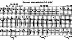 Гіпокаліємія та іони - аритмії серця (1)