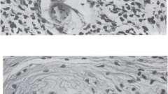 Гранульоми і гранулематозное запалення при гельмінтозах - гранулематозное запалення і гранулематозні хвороби