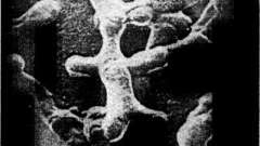 Характеристика мікрофлори - дисбактеріоз у дітей