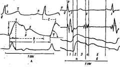 Характеристика нормальних реоенцефалограми великих півкуль - клінічна реоенцефалографія