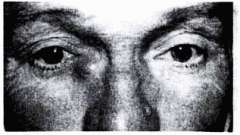 Хронічний катаральний простий дакріоцистит - хвороби слізних органів
