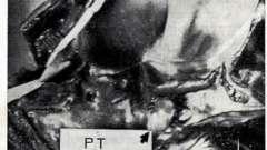 Інфекційний ендокардит - захворювання серцево-судинної системи дітей