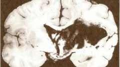 Інтрацеребральні крововиливи при лакунарному стані мозку - патологія головного мозку при атеросклерозі і артеріальної гіпертонії