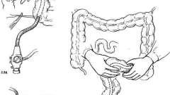 Інтраопераційна ендоскопія - посібник з клінічної ендоскопії
