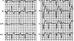Штучний подвійний ритм шлуночків - електрокардіограма при штучному водія ритму серця