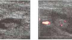Дослідження ультразвукове лімфатичних вузлів