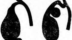 Зміна форми жовчного міхура