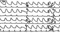 Зміни реоенцефалограми при епілепсії і мігрені - клінічна реоенцефалографія