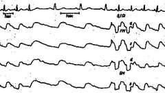Зміни рег при ураженні передньої мозкової артерії - клінічна реоенцефалографія