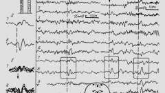 Зміни викликаних потенціалів при осередкової патології - клінічна електроенцефалографія