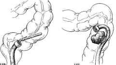 Витяг чужорідних тіл з товстої кишки - посібник з клінічної ендоскопії