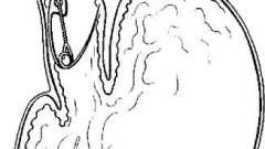 Витяг чужорідних тіл з шлунково-кишкового тракту - посібник з клінічної ендоскопії