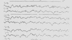 Еег при паразитарних формах ураження головного мозку - клінічна електроенцефалографія