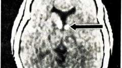 Ектодермальние дисплазії - хвороби нервової системи у дітей