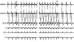 Електрофізіологічне дослідження пароксизмальної синусової тахікардії - аритмії серця (3)