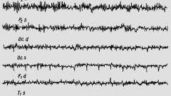Електроенцефалографічні дослідження - гіпертонічний криз