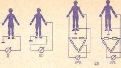 Електрокардіографічні відведення - посібник з клінічної електрокардіографії дитячого віку