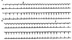 Електрокардіографічні ознаки аритмії - аритмії серця (3)