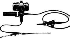 Енцефалоскопія - посібник з клінічної ендоскопії