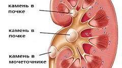 Камені в нирках