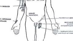 Катетеризація вен - невідкладна терапія, анестезія і реанімація