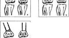 Колінний суглоб, вальгусні і варусні викривлення